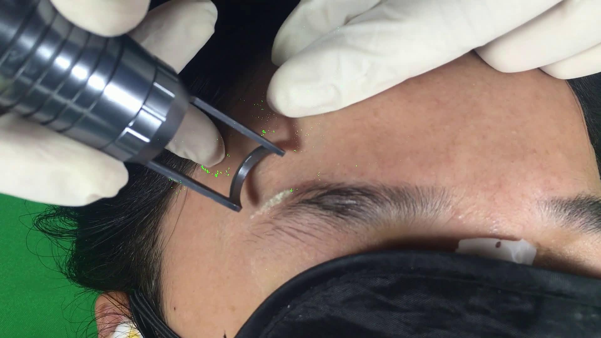 大连尚都绅殿【大连尚都神殿】邴力教授洗眉视频洗纹身文眉视频洗纹眉图片