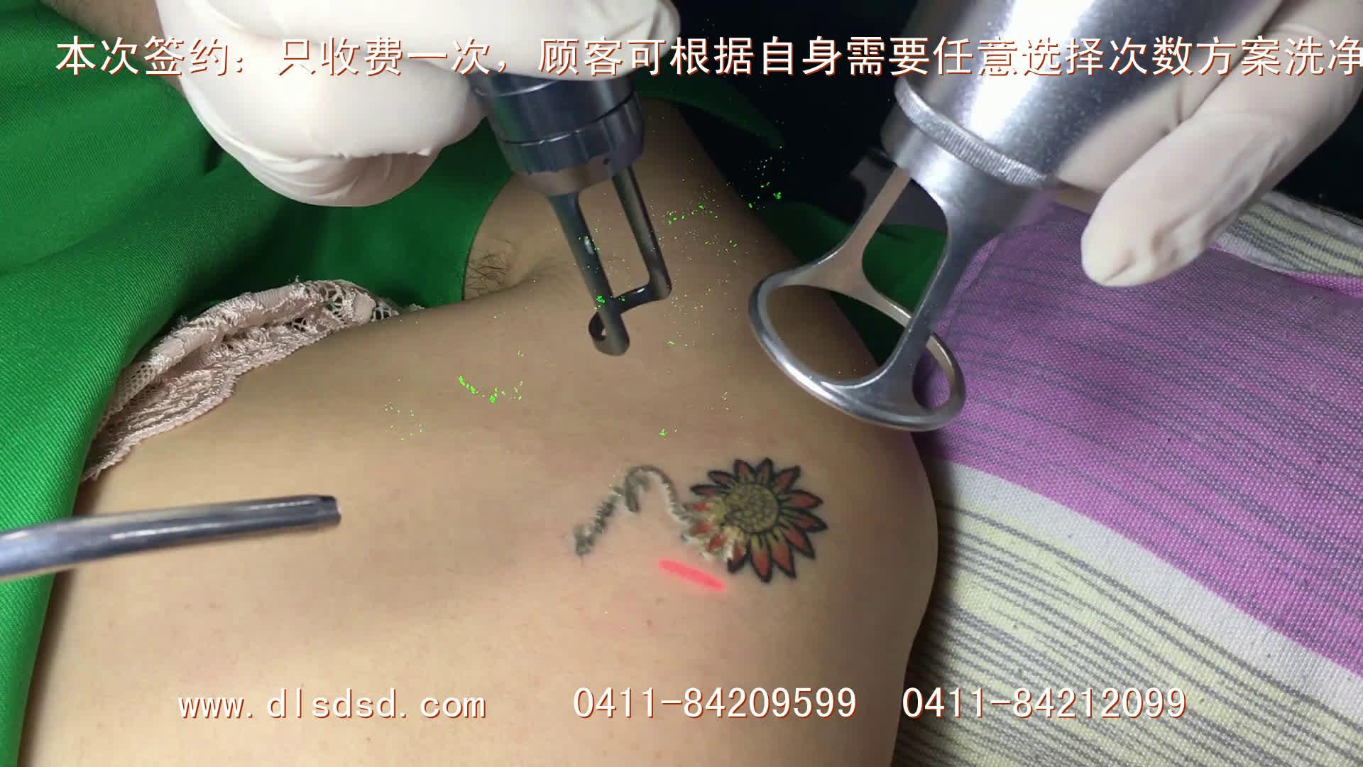 洗纹身前后照片洗黄色红色纹身视频-大连尚都绅殿【大连尚都神殿】图片
