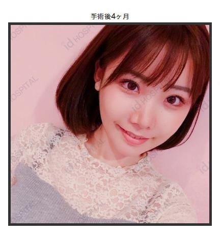 深田久美_【女神杂谈1】日本女演员深田咏美的整容历程