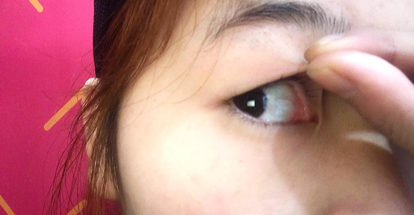内双肿步骤也有看得见的双眼皮泡制方法眼泡绿茶图片
