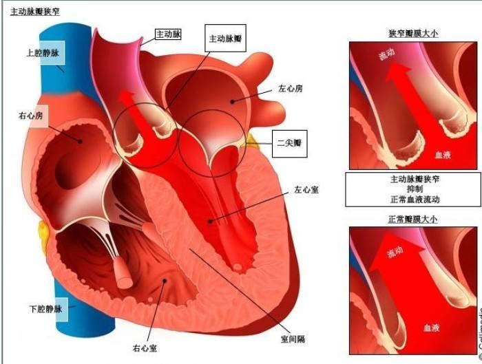 上一课链接cv1191631,今天讲点简单的,看心脏 再说x线之前先说正常图片