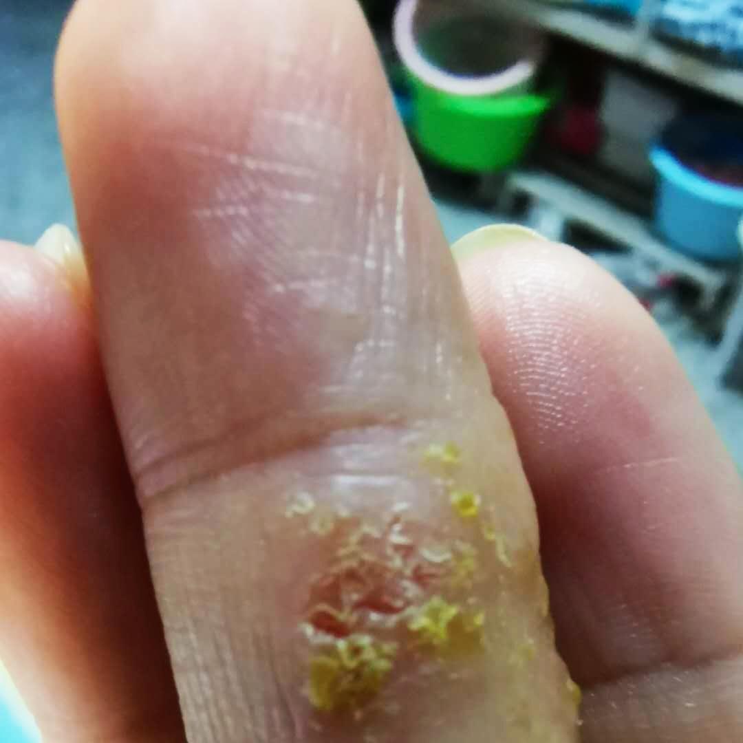 手部湿疹的战斗ing-没有经验只有实践~往死里作!!