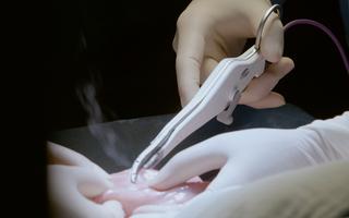 燒灼法一秒止血大動脈!黑科技開啟醫學新時代